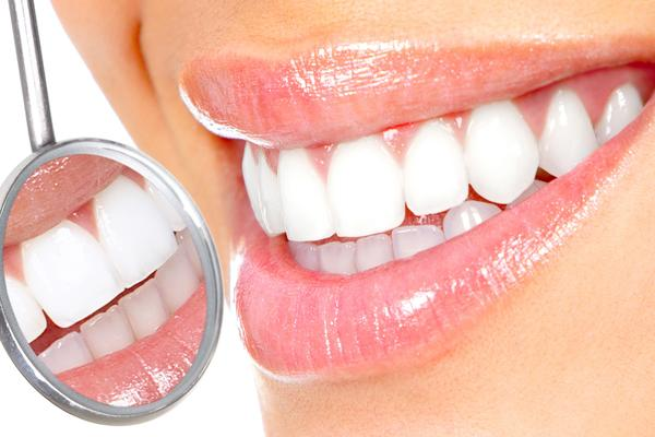 Sbiancamento Dentale + Igiene Orale!